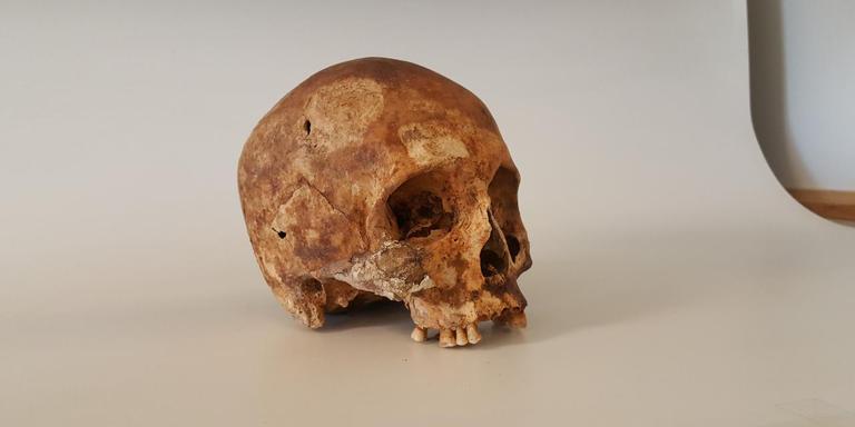 De schedel van Schelte van Aysma.