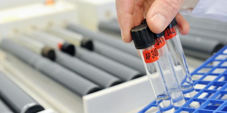 WADA schorst dopinglaboratorium in Rio