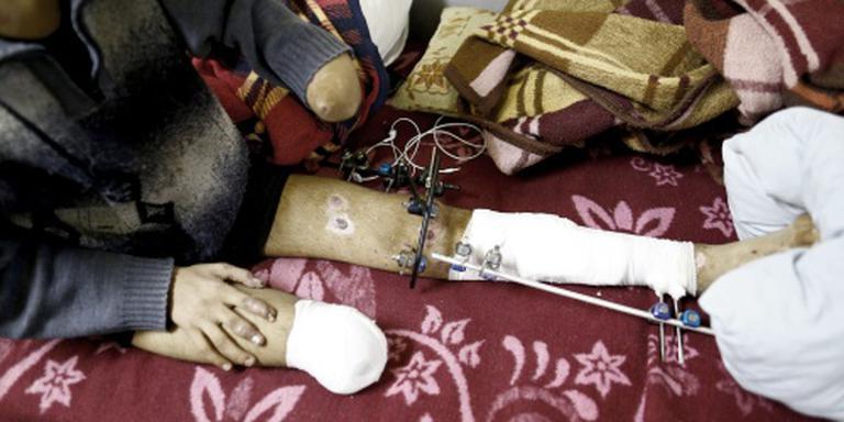 'Ruim 11 procent Syrische volk dood of gewond'