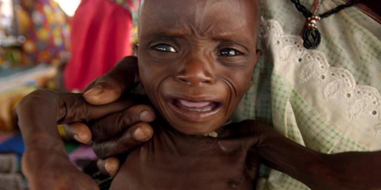 Kwart miljoen kinderen ondervoed in Nigeria