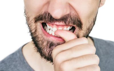 Nagelbijten kan heel wat tandschade veroorzaken